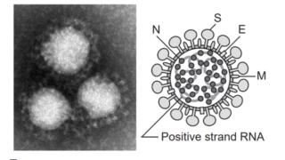 img 5e2fae1bc6a31 320x180 - 新型コロナウイルスの解説;そもそもウイルスとは?特徴・症状・対策